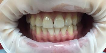 Результат отбеливания зубов системой отбеливания Smileffect у девушки фото до лечения