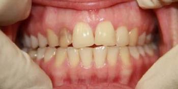 Эндоотбеливание (внутриканальное отбеливание депульпированного и впоследствии потемневшего зуба) фото до лечения