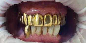 Замена коронок из золота на металлокерамические фото до лечения