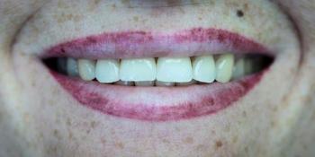Установка дентального имплантата Osstem с безметалловой коронкой Емах фото после лечения