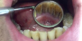 Снятие зубного камня ультразвуковым скалером пр-ва NSK фото до лечения