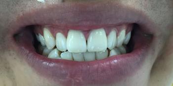 Отбеливание зубов системой Smileffect фото после лечения