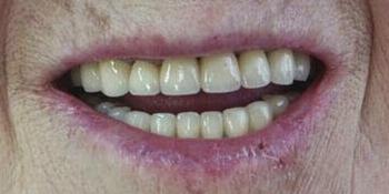 Восстановление формы и высоты фронтальных зубов и восполнение отсутствующих жевательных зубов фото после лечения