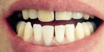 Ревставрация зубов коронкой E-MAX фото после лечения