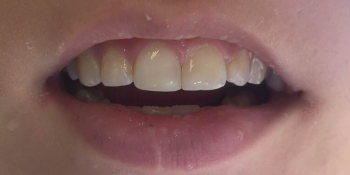 Эстетическое восстановление скола переднего зуба фото после лечения