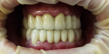 Замена коронок из золота на металлокерамические фото после лечения