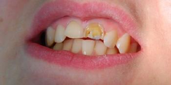 Установка двух безметалловых коронок E Max на 2 передних зуба фото до лечения