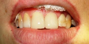 Устранение промежутка (диастемы) между центральными резцами верхней челюсти фото после лечения