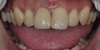Восстановление передних зубов из композитного материала и безметалловой коронки фото после лечения