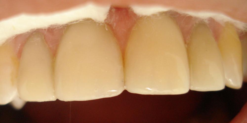 облиц центр двойки Реставрация фронтальной группы зубов верхней челюсти, внутриканальное отбеливание