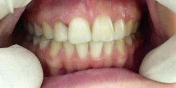 Эндоотбеливание (внутриканальное отбеливание депульпированного и впоследствии потемневшего зуба) фото после лечения