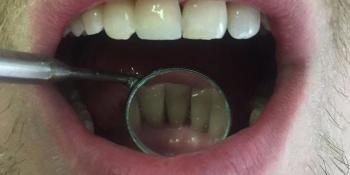 Снятие зубного камня ультразвуковым скалером пр-ва NSK фото после лечения
