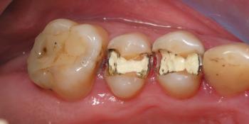 Замена амальгамных пломб с установкой световой пломбы фото до лечения