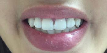 Результат отбеливания зубов системой отбеливания Smileffect у девушки фото после лечения