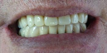 Протезирование при полном отсутствии зубов верхней челюсти и жевательных зубов нижней челюсти фото после лечения