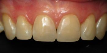 Восстановление режущего края передних зубов фото после лечения
