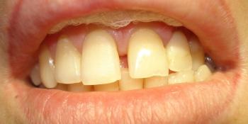 Устранение промежутка (диастемы) между центральными резцами верхней челюсти фото до лечения