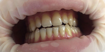 Результат отбеливания зубов системой Smileffect фото до лечения