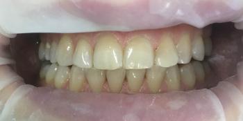 Проведена эстетическая реставрация зуба 2.2, материал Filtek Ultimate фото после лечения