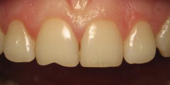 Восстановление скола переднего зуба фото до лечения
