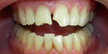 Наращивание переднего зуба, скол зуба, художественная реставрация фото до лечения