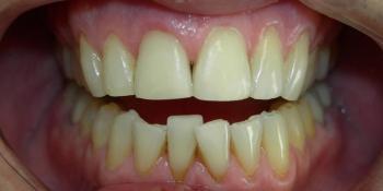 Наращивание переднего зуба, скол зуба, художественная реставрация фото после лечения