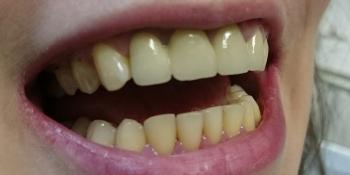 Керамические коронки на основе диоксида циркония (ZrO2) на 4-х фронтальных зубах фото после лечения