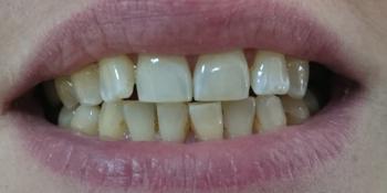 Пришлифовка суперконтактов фронтальных зубов с последующей полировкой фото после лечения