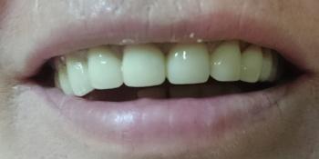 Восстановление эстетики и анатомической целостности зубного ряда верхней челюсти фото после лечения