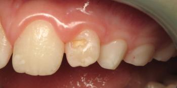 Лечение клиновидного дефекта 2-го центрального зуба фото до лечения